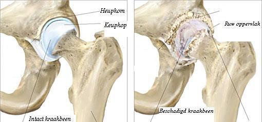 oorzaak pijnlijke spieren en gewrichten